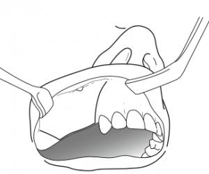 greffe-osseuse-intra-sinusienne-augmentation-sous-sinusienne-sinus-lift-1-docteur-bontemps