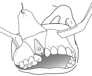 greffe-osseuse-dapposition-greffe-en-onlay-chirurgie-pre-implantaire-docteur-bontemps