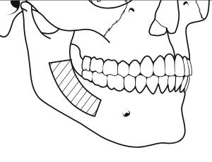 greffe-osseuse-prelevement-angle-mandibulaire-chirurgie-pre-implantaire-docteur-bontemps