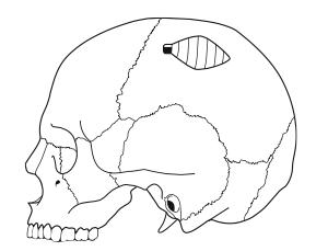 greffe-osseuse-prelevement-parietal-1-mandibulaire-chirurgie-pre-implantaire-docteur-bontemps