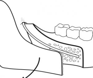 osteotomie-sagittale-de-la-branche-montante-mandibulaire-2-chirurgie-orthognatique-docteur-bontemps