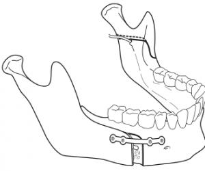 osteotomie-sagittale-de-la-branche-montante-mandibulaire-3-chirurgie-orthognatique-docteur-bontemps